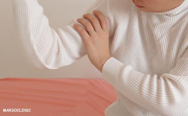 Axillary web syndrome stretches