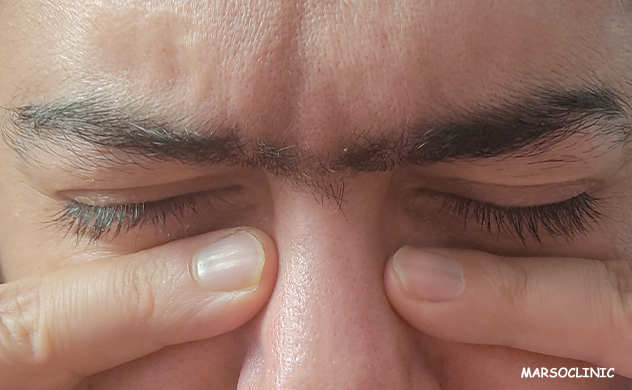 Can nose polyps be removed without surgery