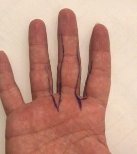 https://www.marsoclinic.com/Fa/main/Cut_finger_nerve_damage_symptoms