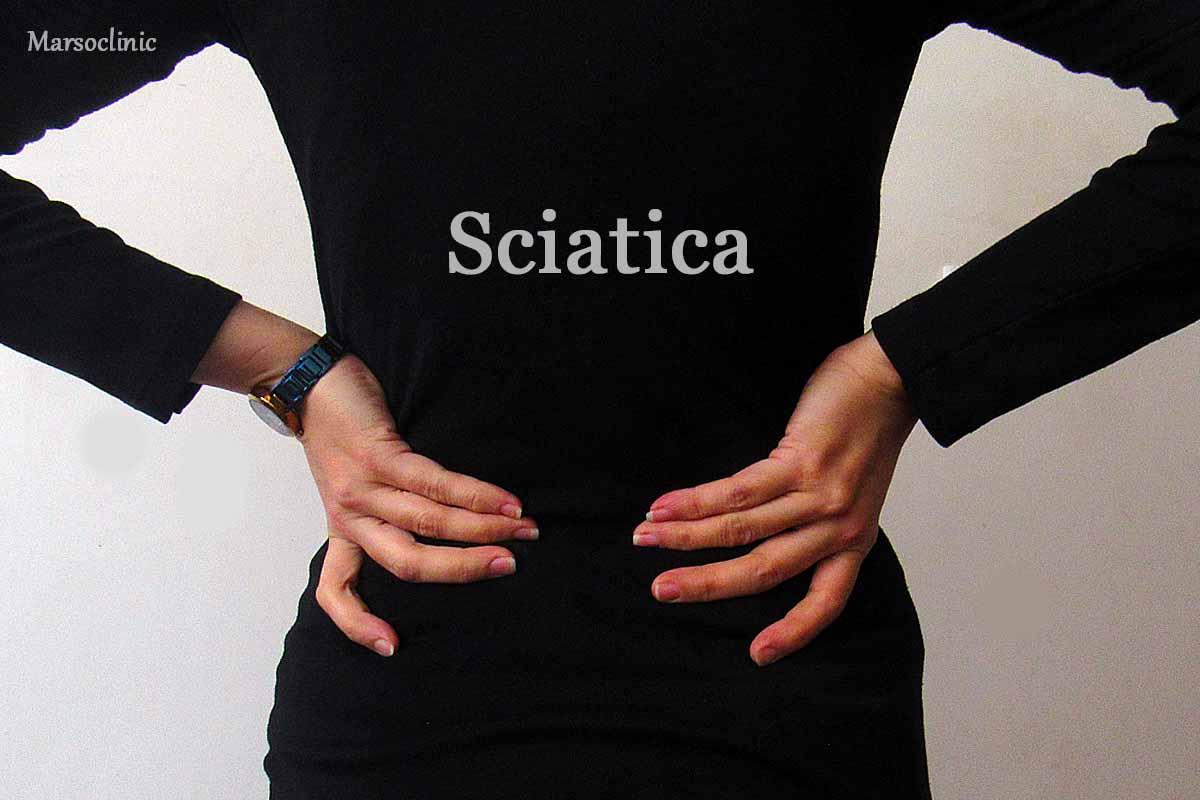 sciatic strecher
