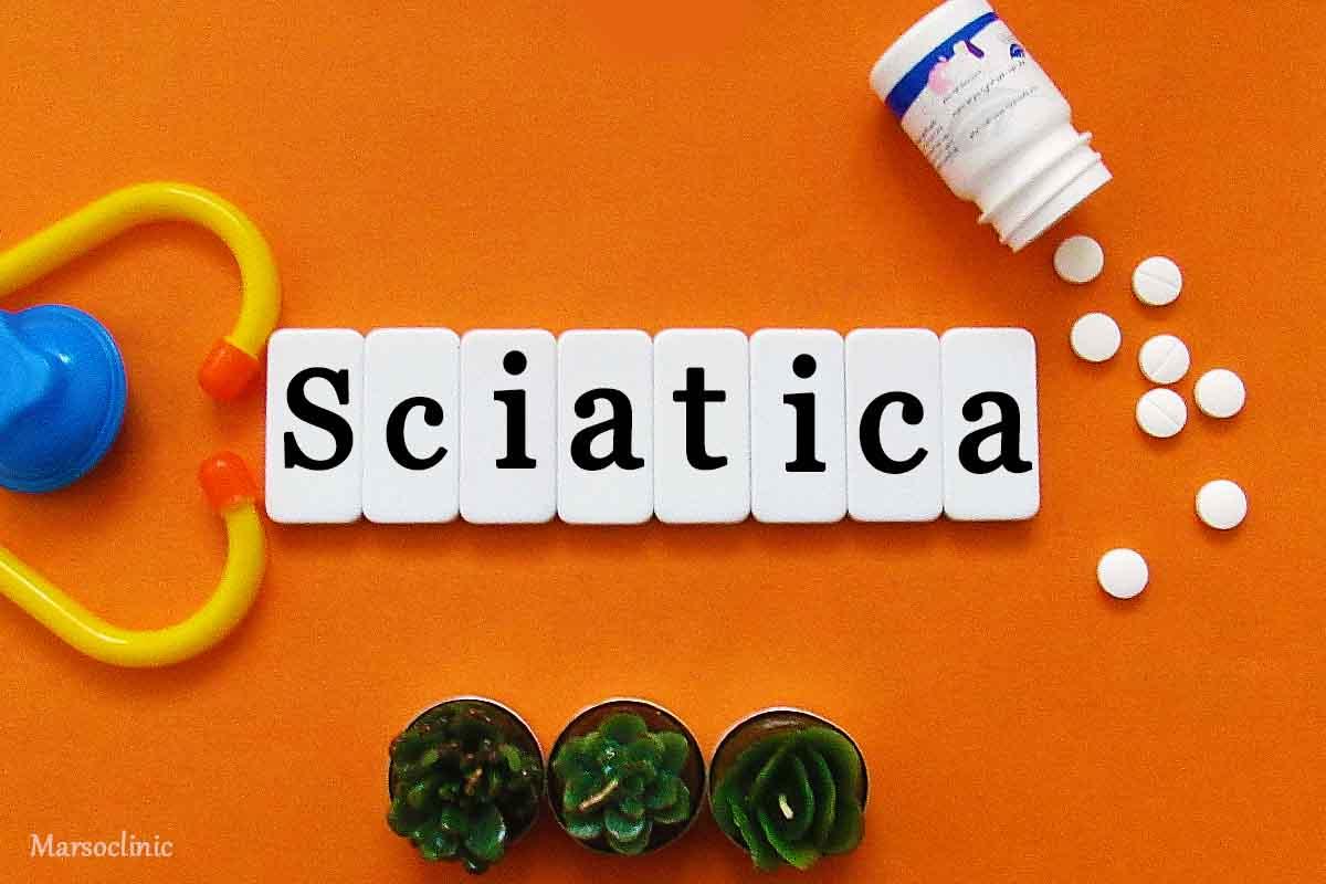 sciatic stretcher