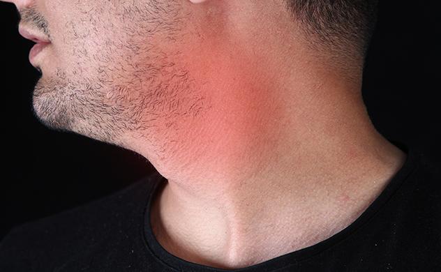 How do i get rid a swallen lymph node behind my ear