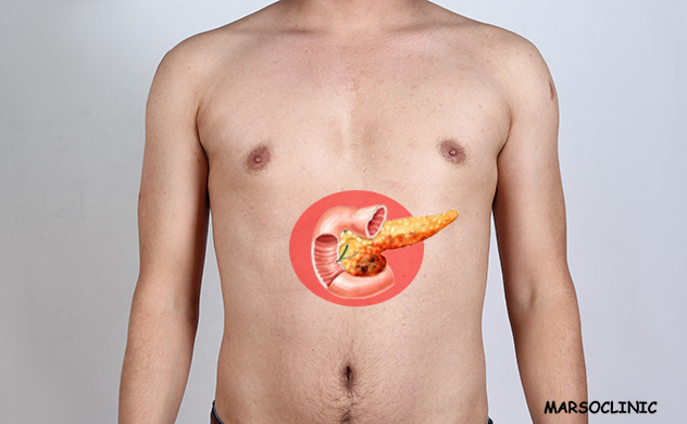 How to diagnose pancreatic cancer early