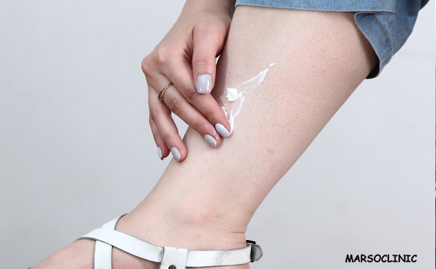https://www.marsoclinic.com/Fa/main/How_to_get_rid_of_strawberry_legs