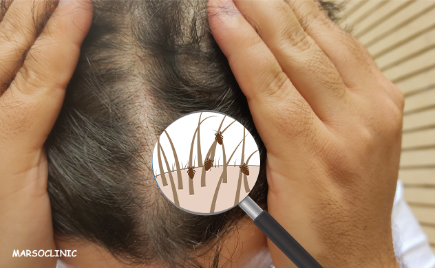 How to remove lice and nits from hair permanently home remedies
