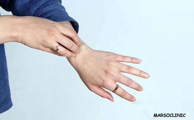 Itchy skin at night hormone imbalance
