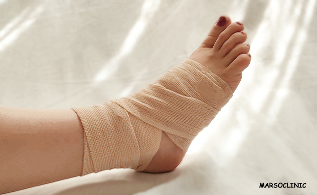 Living with a non-union fracture