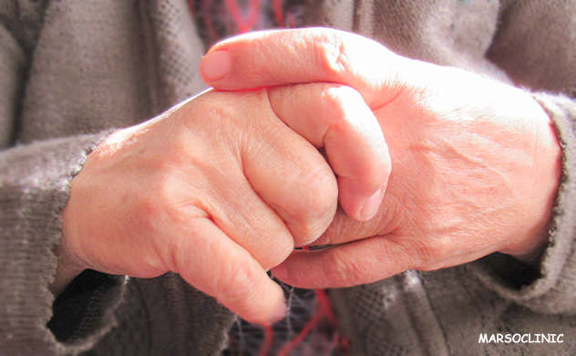 Rheumatoid arthritis symptoms but negative blood test