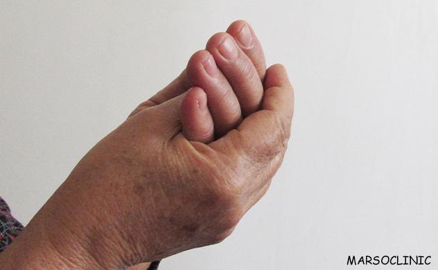 Safer drug for rheumatoid artheritis