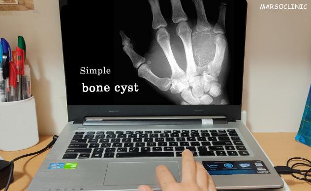Simple bone cyst