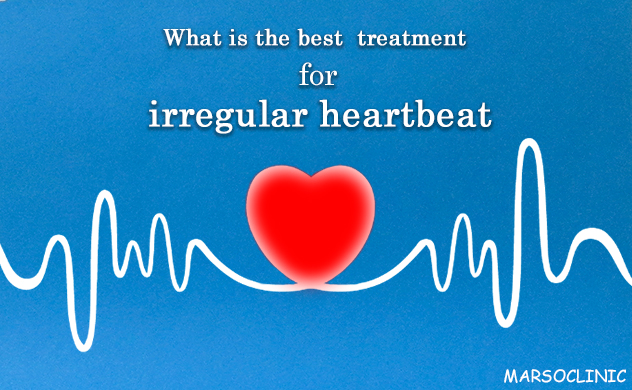 What is the best  treatment for irregular heartbeat