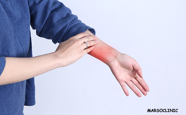 blood cancer symptoms itchy skin