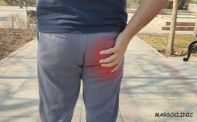 difference between piriformis syndrome and sciatica